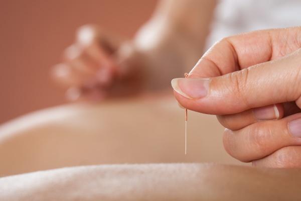 paare die akupunktur behandlung im spa