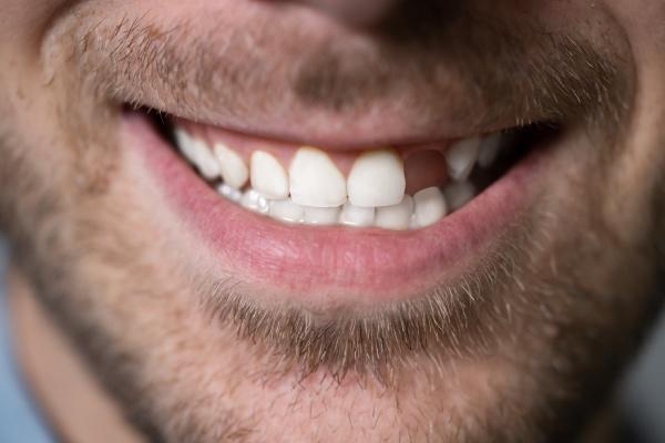 mann mit fehlendem zahn