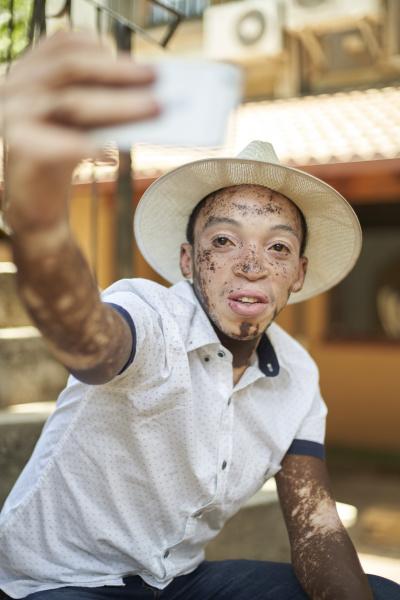 junger mann mit vitiligo mit smartphone
