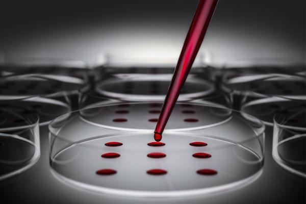 blutprobe auf petrischale im labor getestet