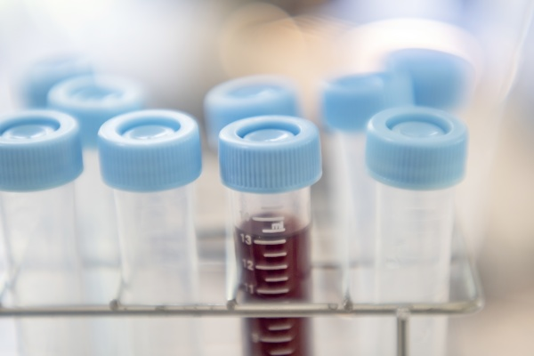 nahaufnahme von reagenzglaesern im labor