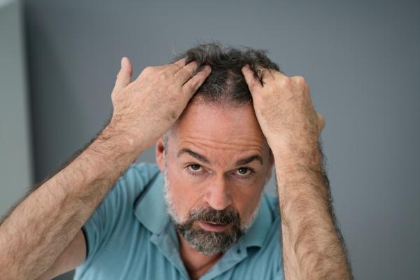 mann ueberprueft seinen haarausfall und schuppen