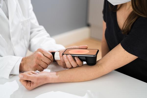 arzt untersucht pigmentierte haut des patienten