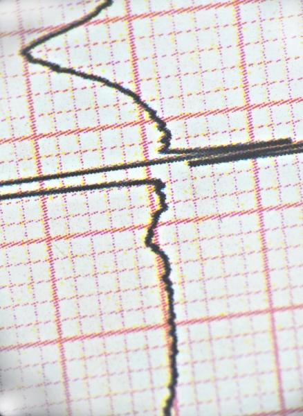 view, of, ecg, heart, beat, wave - 30729190