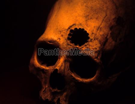 cranial surgery peru