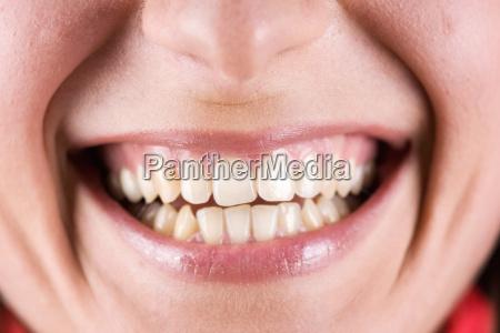 bocca della donna che ride