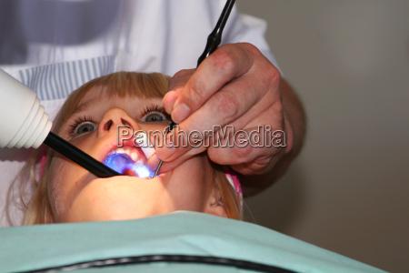zaehne zahnarzt zahnweh zahnschmerzen zahnschmerz kind