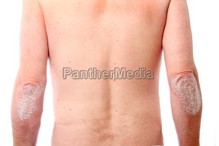 ausgepraegte psoriasis an beiden ellbogen