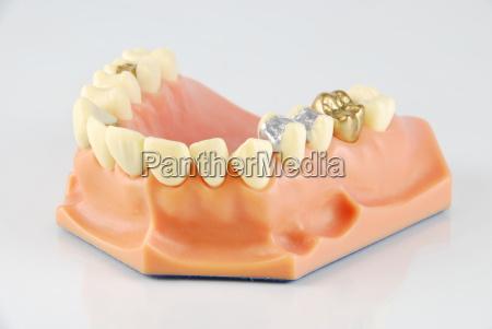 dentalmodell mit verschiedenen behandlungen