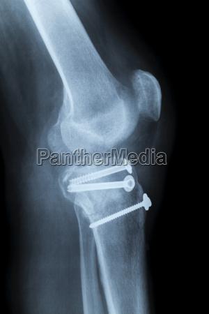 menschliches knie seitlich roentgenaufnahme nach reposition