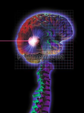 diagramm der radiochirurgie