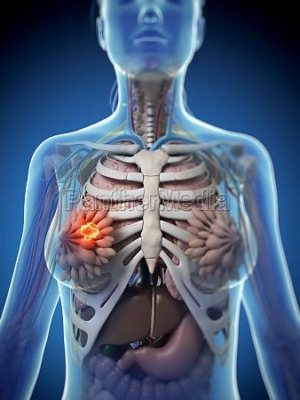 3d rendered illustration of breast cancer