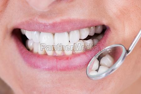 zahnarzt untersuchen patient