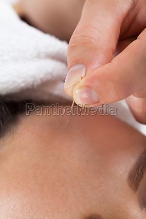 frau die akupunktur behandlung im spa