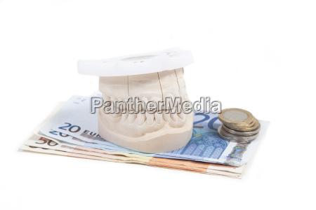 zahnprothese bezahlen