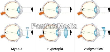 sehfehler kurzsichtigkeitweitsichtigkeit und astigmatismus