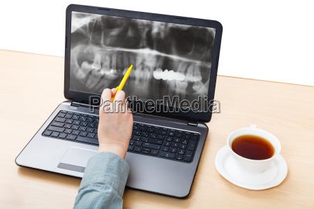 zahnarzt analysiert roentgenbild von backen auf