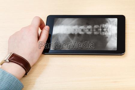 wissenschaftler analysiert wirbelsaeule auf tablet pc