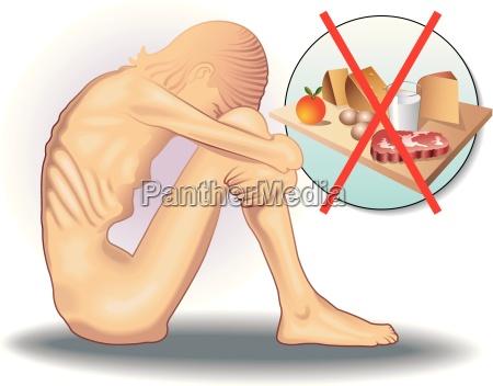 symbolische medizinische darstellung des essstoerung magersucht