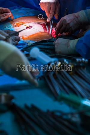 chirurgie in einem modernen krankenhaus von
