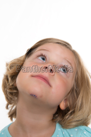 little white girl with wound in