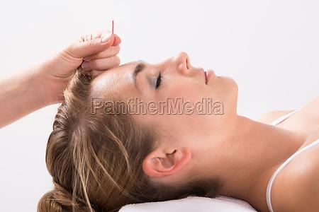 hand durchfuehren akupunktur therapie auf dem