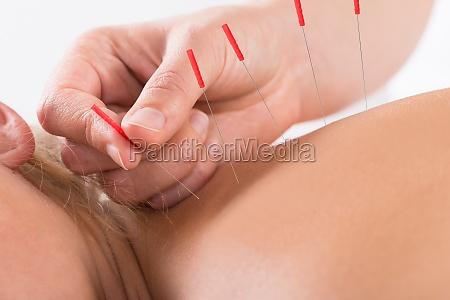 die hand darstellende akupunktur therapie auf