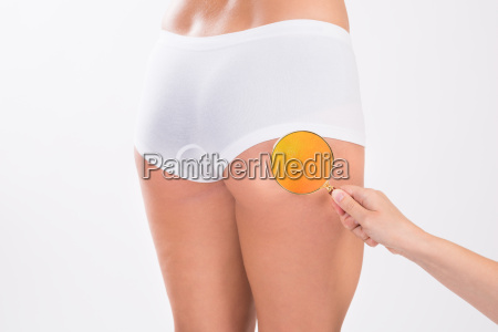 therapist analyzing fats on womans buttock