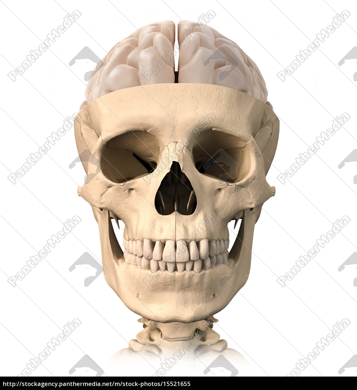 menschlicher schädel cutaway,mit einem halben gehirn - Stockfoto ...
