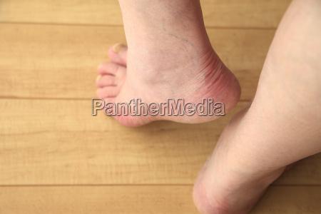 senior man shows a heel