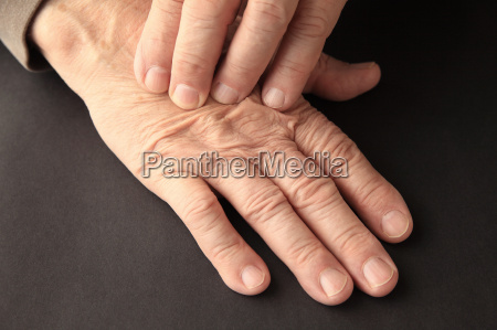 man with a sore hand with