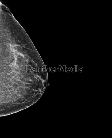 breast mammography x ray of womans