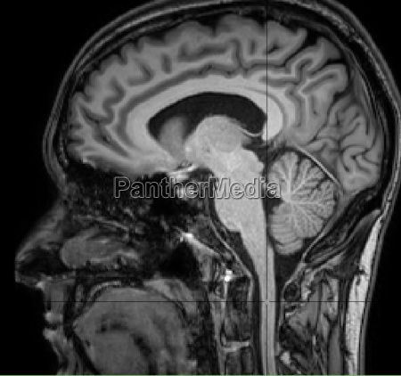 sagittal view of the brain and