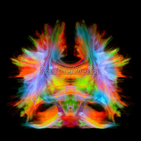 full brain tractography with artistic color