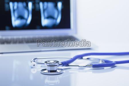 modern orthopedics acoustic stethoscope and a