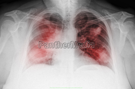 chest x ray of a 44