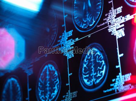 scan des menschlichen gehirns in einer