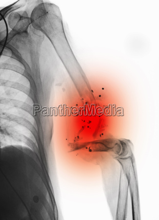 x ray showing gunshot wound to