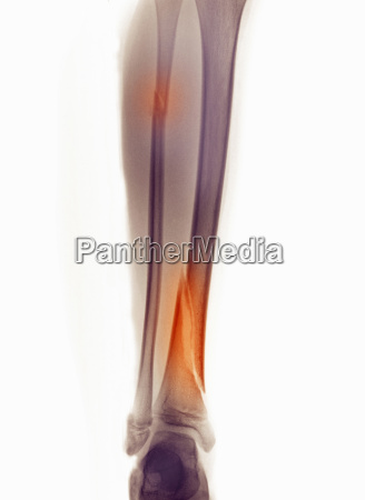 x ray of leg showing fracture