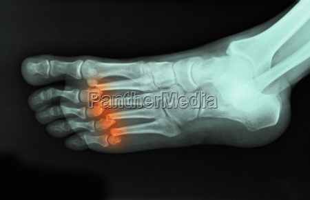 x ray of foot showing fractured