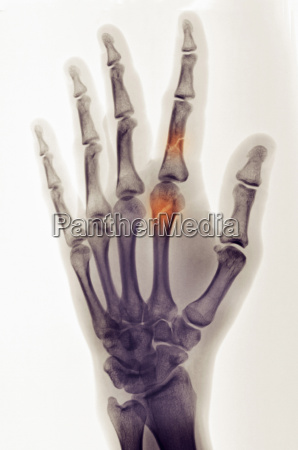 colorized x ray of hand showing