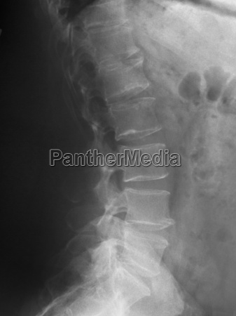 lumbar spine x ray of a