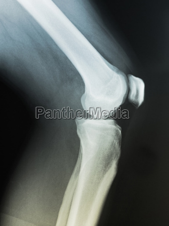 normal knee x ray of a