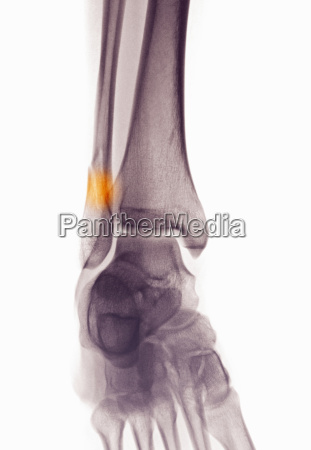 ankle x ray showing fractured distal