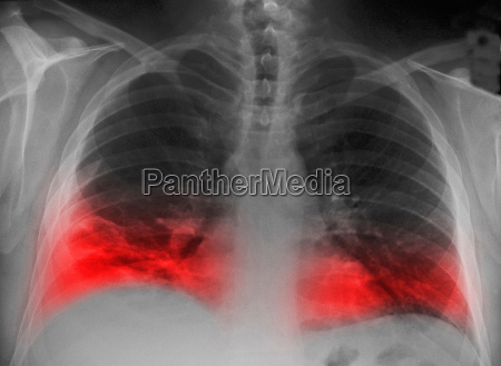 cxr, of, smoker, with, infiltrate, of - 19446312