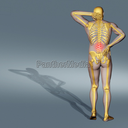 medizinisches medizinischer medizinische medizinisch wissenschaft schmerz