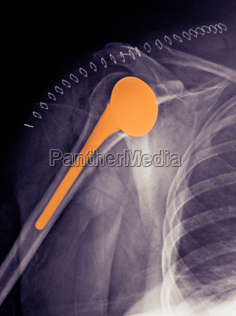 shoulder replacement x ray of a