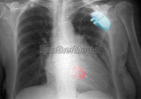 chest x ray with valve and