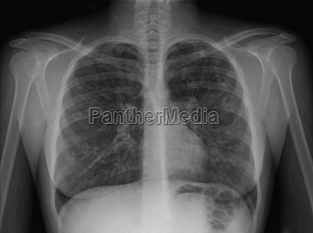 x ray of chest showing cystic