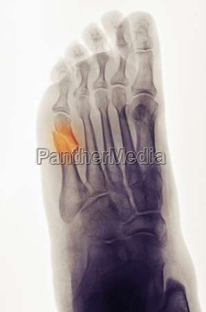 x ray of foot showing a